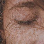 La dieta anti melanoma